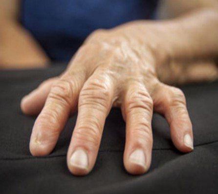 Arthritis drug Vioxx doubled heart attack risk