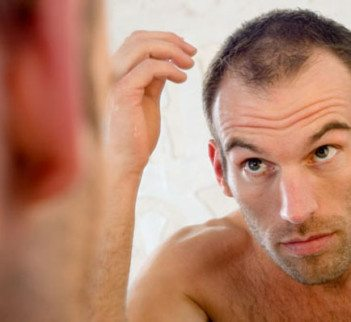 Could Baldness in a Young Man be Reduced by the Food Consumed?